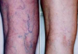Remove varicose veins
